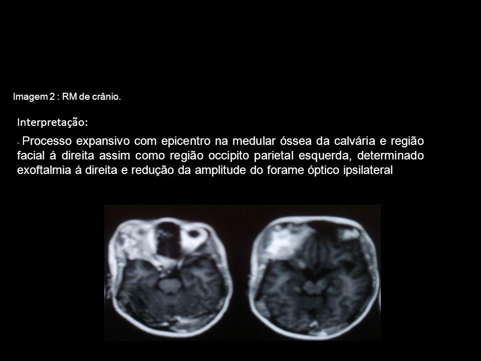 Interpretação: Imagem 2 : RM de crânio.