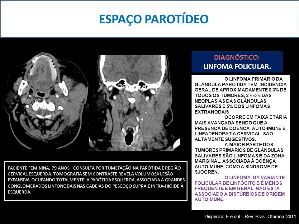 ESPAÇO PAROTÍDEO DIAGNÓSTICO: LINFOMA FOLICULAR.