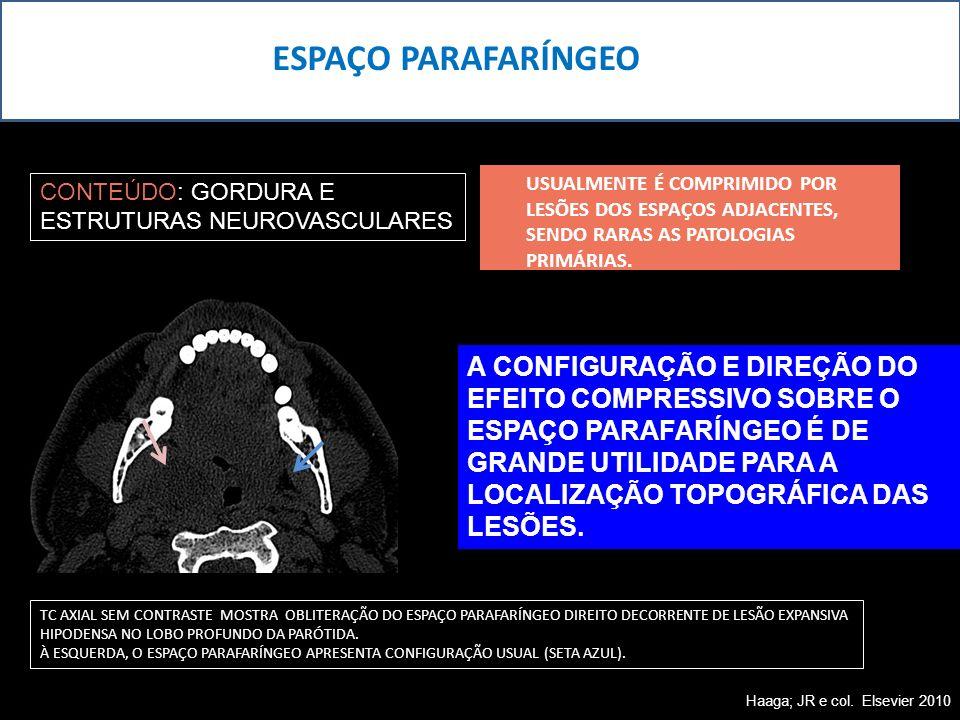 ESPAÇO PARAFARÍNGEO USUALMENTE É COMPRIMIDO POR LESÕES DOS ESPAÇOS ADJACENTES, SENDO RARAS AS PATOLOGIAS PRIMÁRIAS.