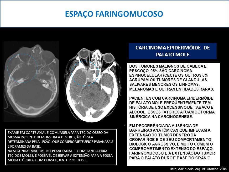 CARCINOMA EPIDERMÓIDE DE PALATO MOLE