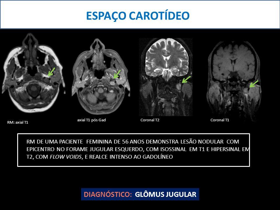 ESPAÇO CAROTÍDEO DIAGNÓSTICO: GLÔMUS JUGULAR