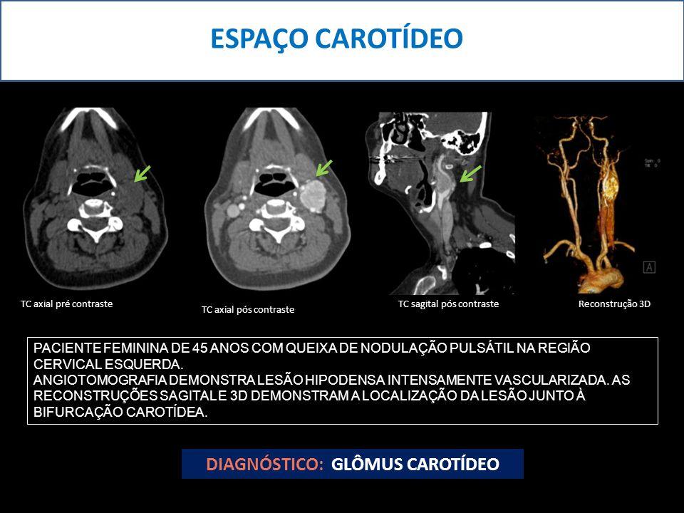 DIAGNÓSTICO: GLÔMUS CAROTÍDEO