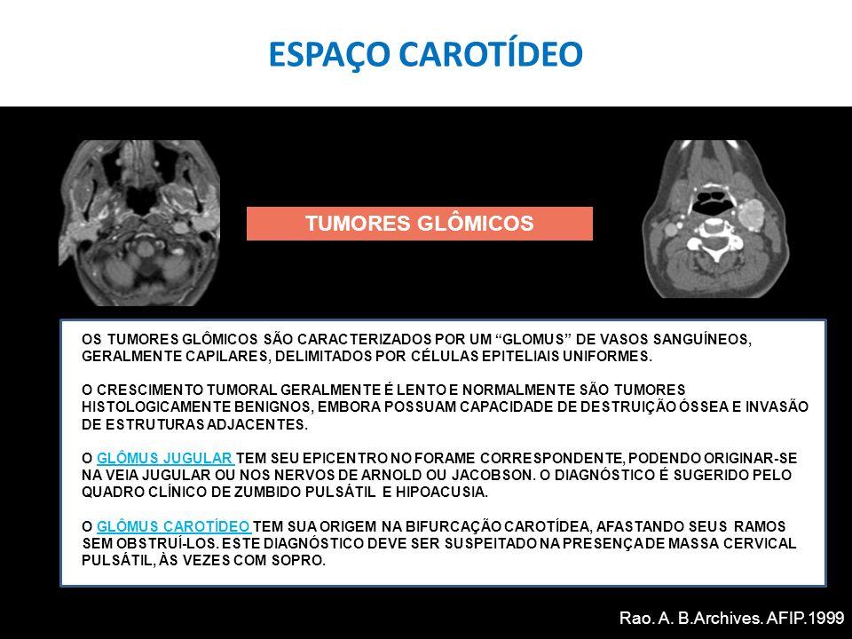 ESPAÇO CAROTÍDEO TUMORES GLÔMICOS Rao. A. B.Archives. AFIP.1999
