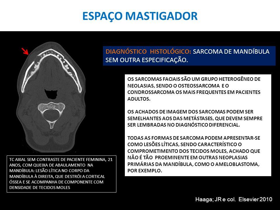ESPAÇO MASTIGADOR DIAGNÓSTICO HISTOLÓGICO: SARCOMA DE MANDÍBULA SEM OUTRA ESPECIFICAÇÃO.