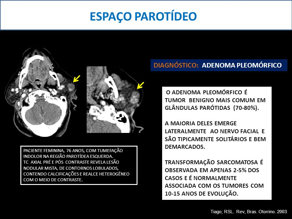 ESPAÇO PAROTÍDEO DIAGNÓSTICO: ADENOMA PLEOMÓRFICO