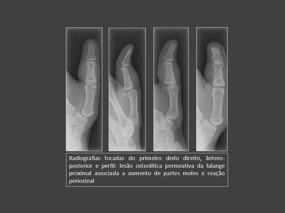 Radiografias focadas do primeiro dedo direito, ântero-posterior e perfil: lesão osteolítica permeativa da falange proximal associada a aumento de partes moles e reação periosteal