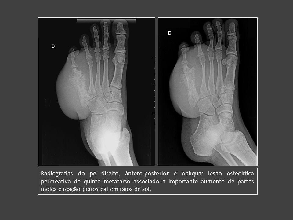 Radiografias do pé direito, ântero-posterior e oblíqua: lesão osteolítica permeativa do quinto metatarso associado a importante aumento de partes moles e reação periosteal em raios de sol.