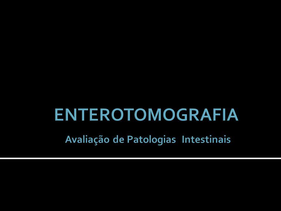 ENTEROTOMOGRAFIA Avaliação de Patologias Intestinais