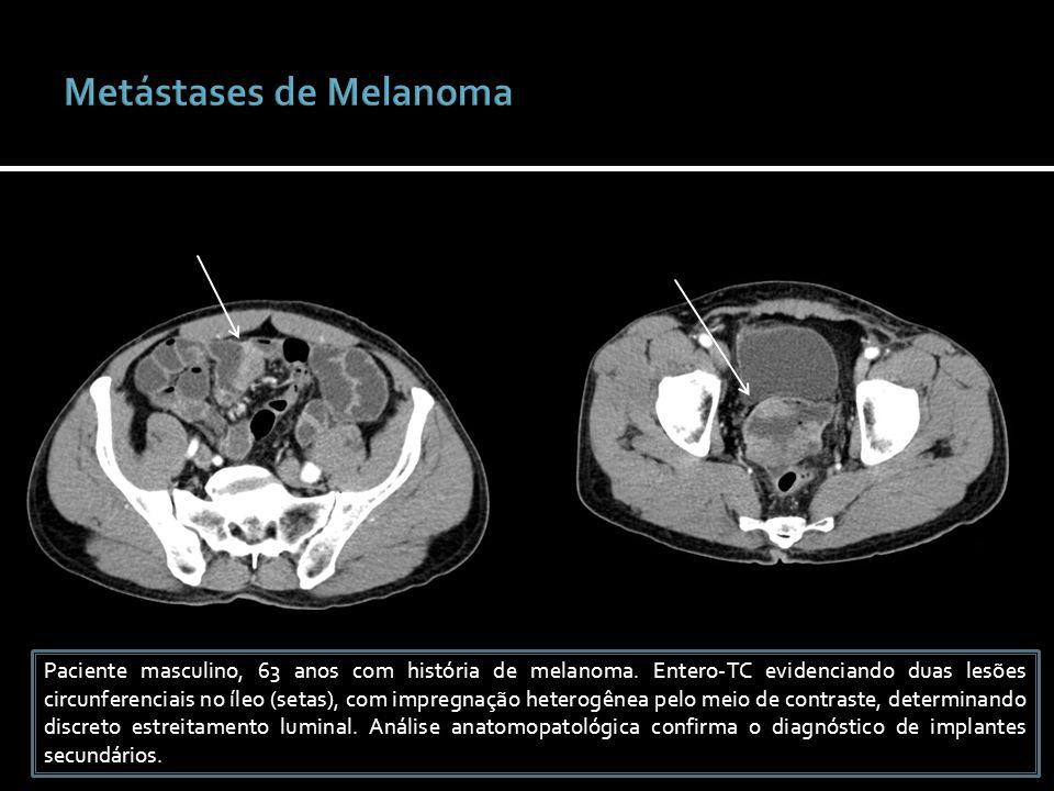 Metástases de Melanoma