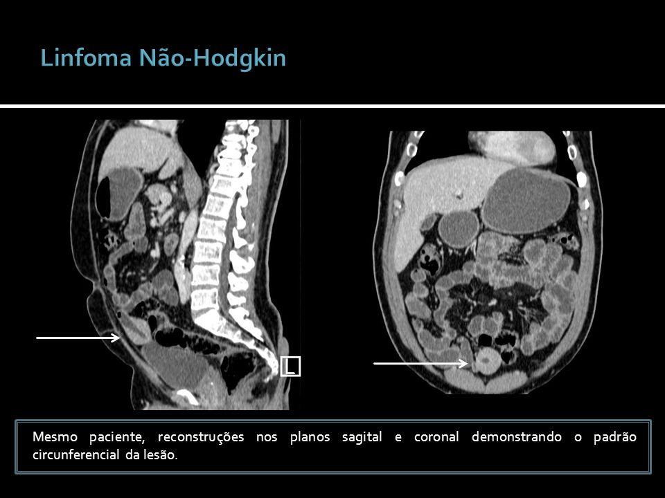 Linfoma Não-HodgkinMesmo paciente, reconstruções nos planos sagital e coronal demonstrando o padrão circunferencial da lesão.