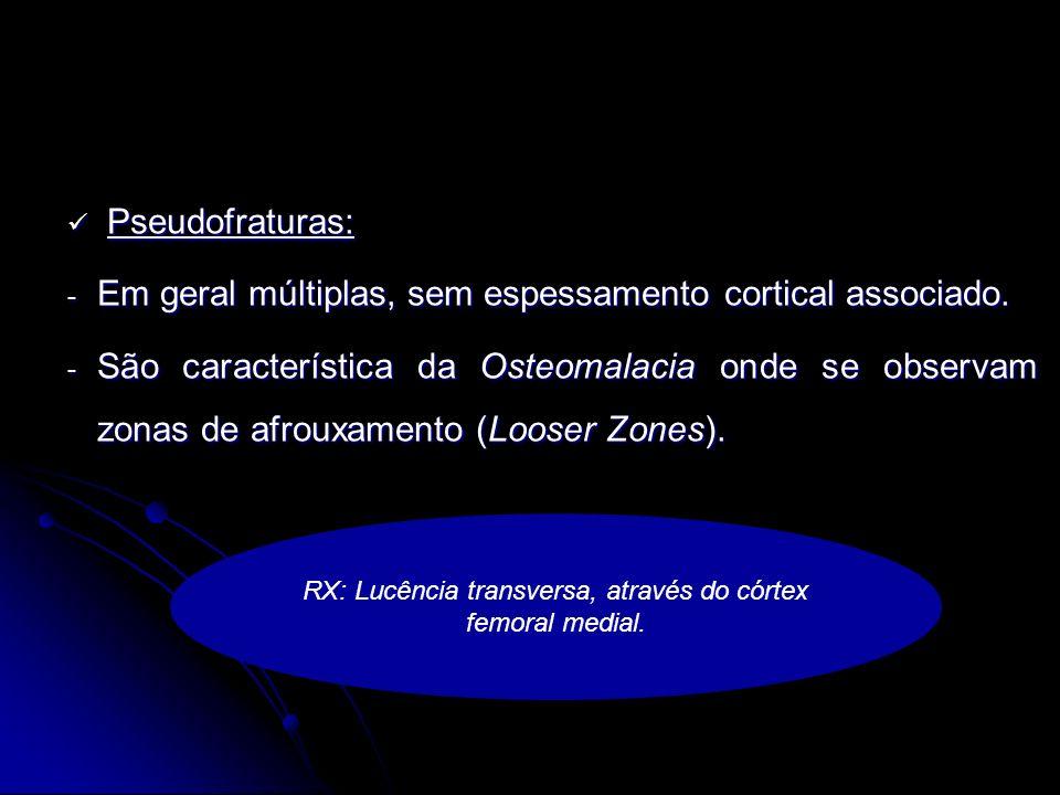 RX: Lucência transversa, através do córtex