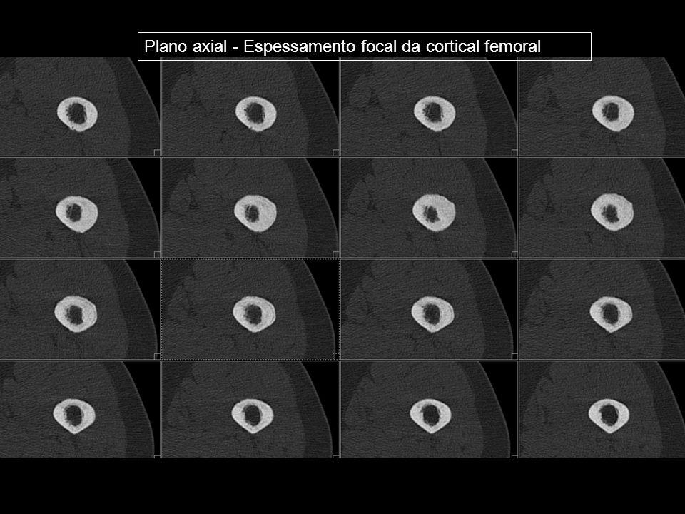 Plano axial - Espessamento focal da cortical femoral