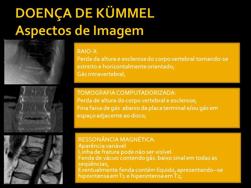 DOENÇA DE KÜMMEL Aspectos de Imagem