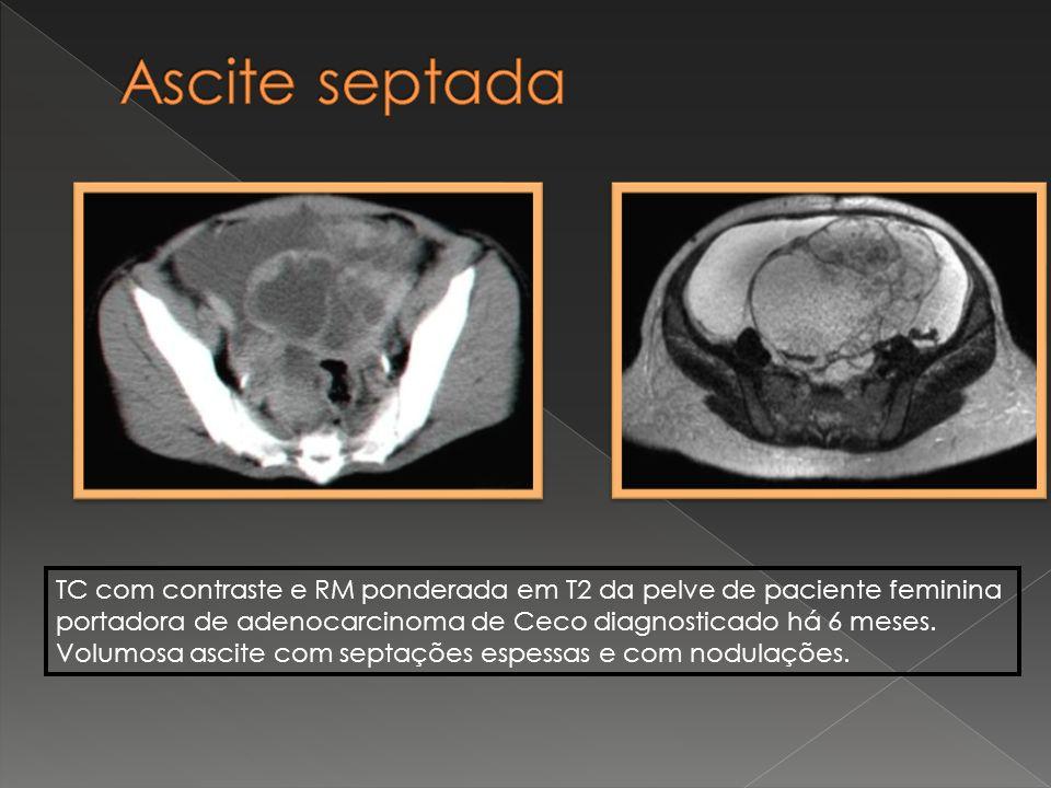 Ascite septada TC com contraste e RM ponderada em T2 da pelve de paciente feminina. portadora de adenocarcinoma de Ceco diagnosticado há 6 meses.