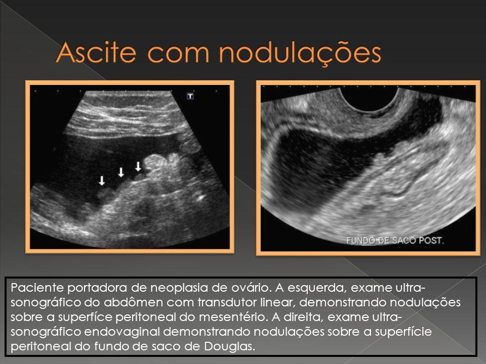 Ascite com nodulações Paciente portadora de neoplasia de ovário. A esquerda, exame ultra-
