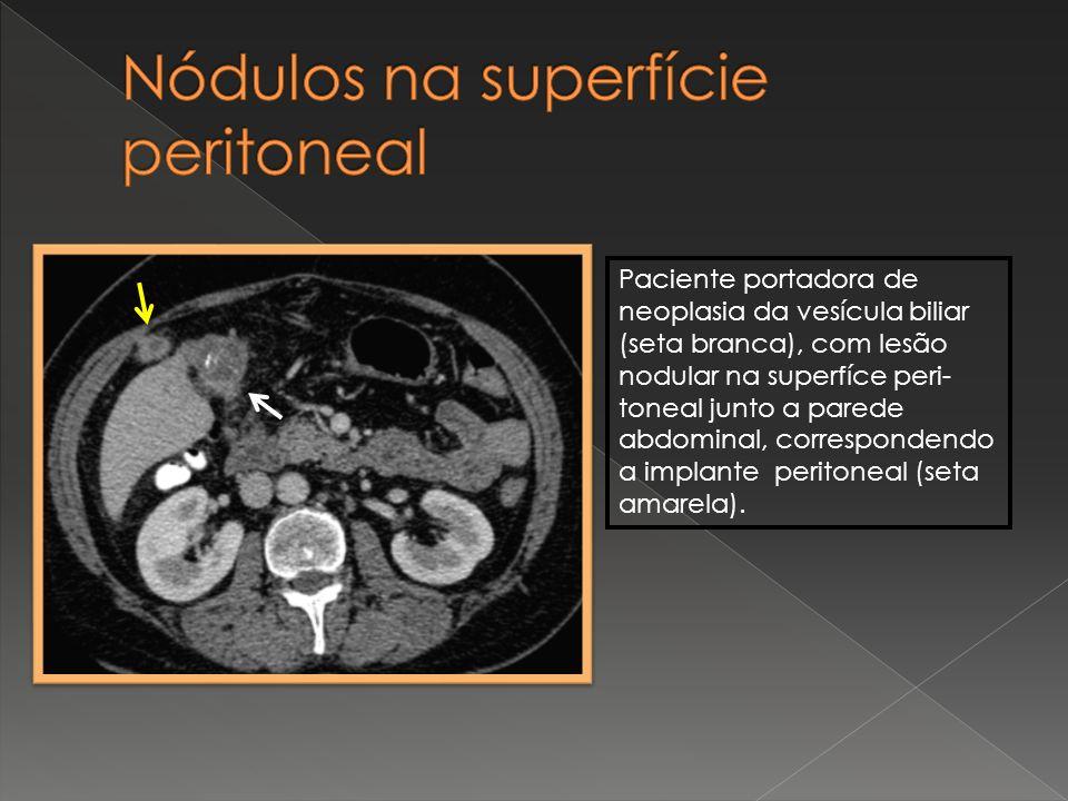 Nódulos na superfície peritoneal