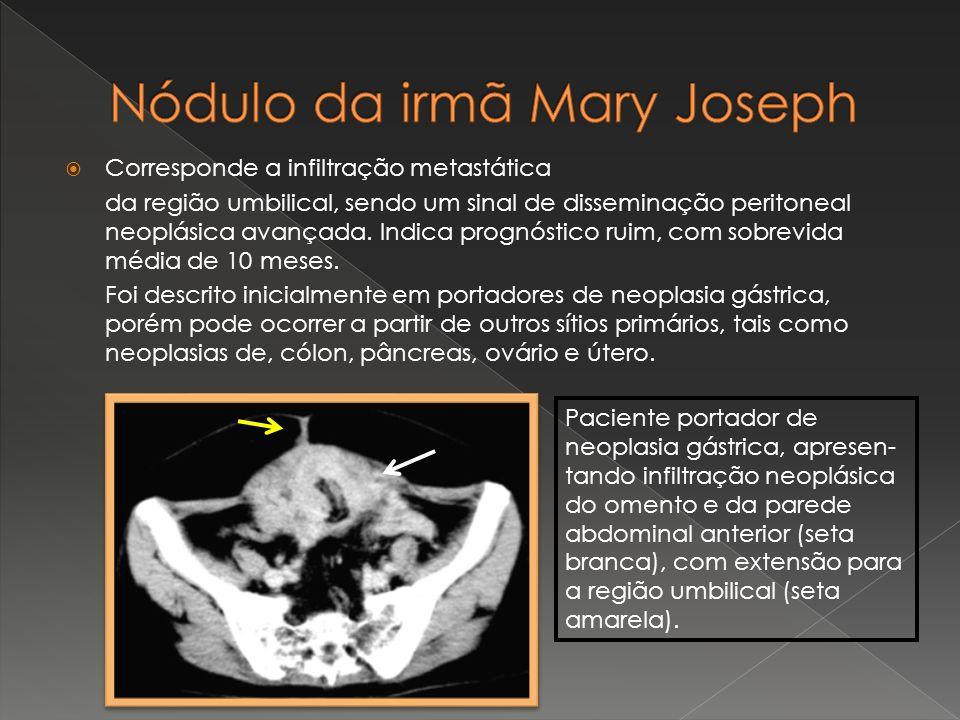 Nódulo da irmã Mary Joseph
