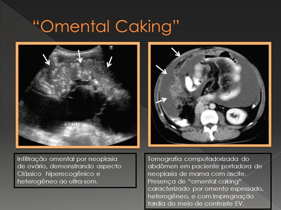 Omental Caking Infiltração omental por neoplasia