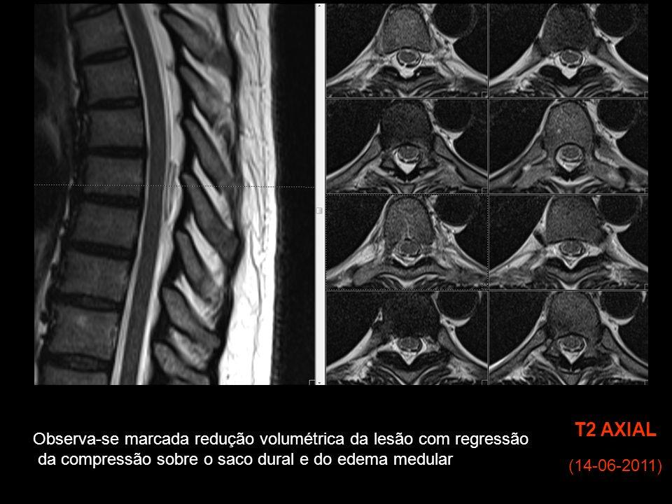 T2 AXIAL Observa-se marcada redução volumétrica da lesão com regressão