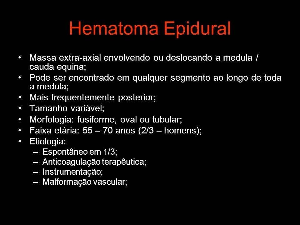 Hematoma Epidural Massa extra-axial envolvendo ou deslocando a medula / cauda equina;