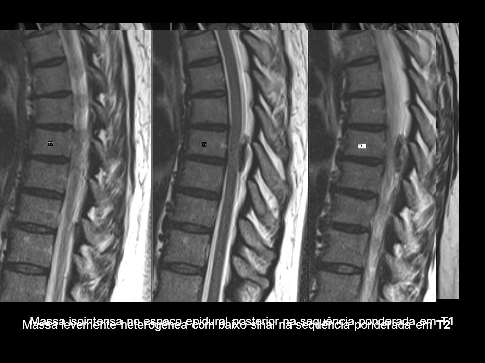 Achados Radiológicos TC: hiperdensidade no interior do canal vertebral