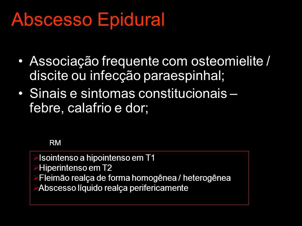 Abscesso Epidural Associação frequente com osteomielite / discite ou infecção paraespinhal;