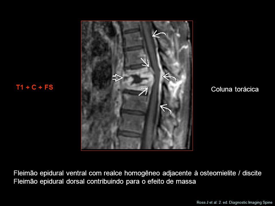Fleimão epidural dorsal contribuindo para o efeito de massa