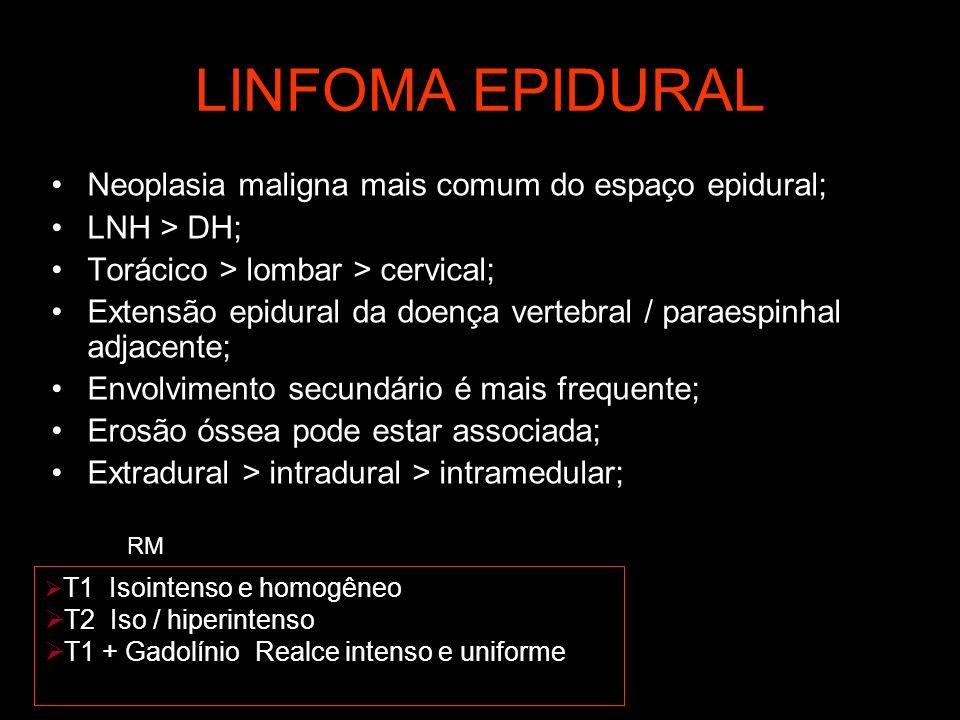 LINFOMA EPIDURAL Neoplasia maligna mais comum do espaço epidural;