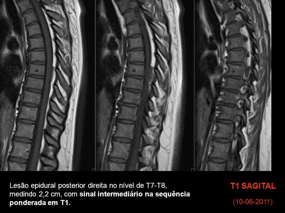 T1 SAGITAL Lesão epidural posterior direita no nível de T7-T8,