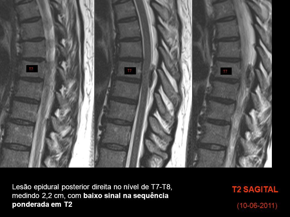 T2 SAGITAL Lesão epidural posterior direita no nível de T7-T8,
