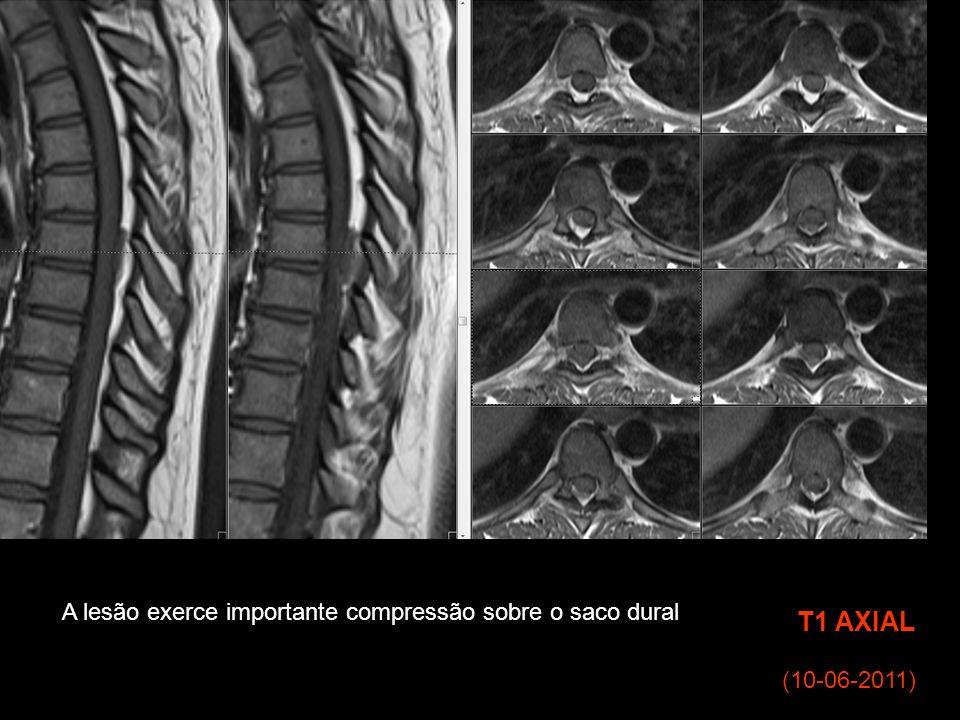 T1 AXIAL A lesão exerce importante compressão sobre o saco dural