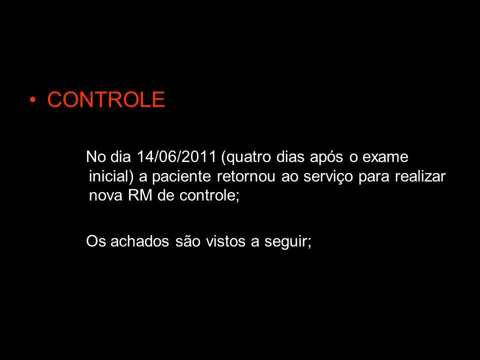 CONTROLE No dia 14/06/2011 (quatro dias após o exame inicial) a paciente retornou ao serviço para realizar nova RM de controle;