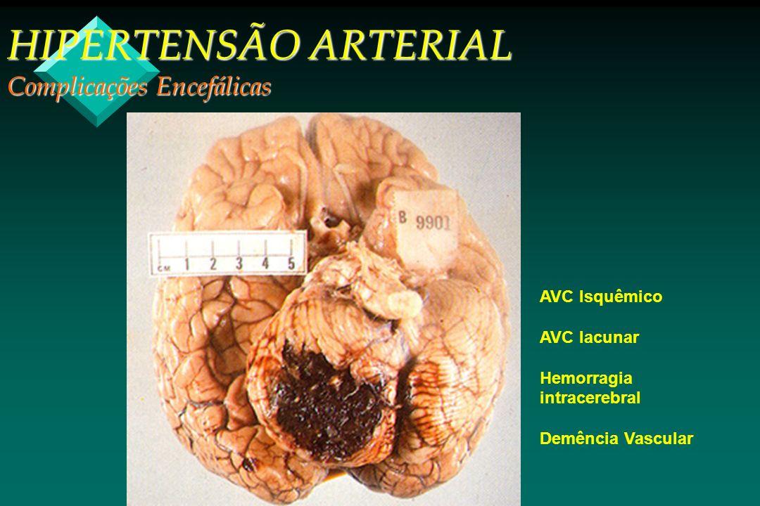 HIPERTENSÃO ARTERIAL Complicações Encefálicas