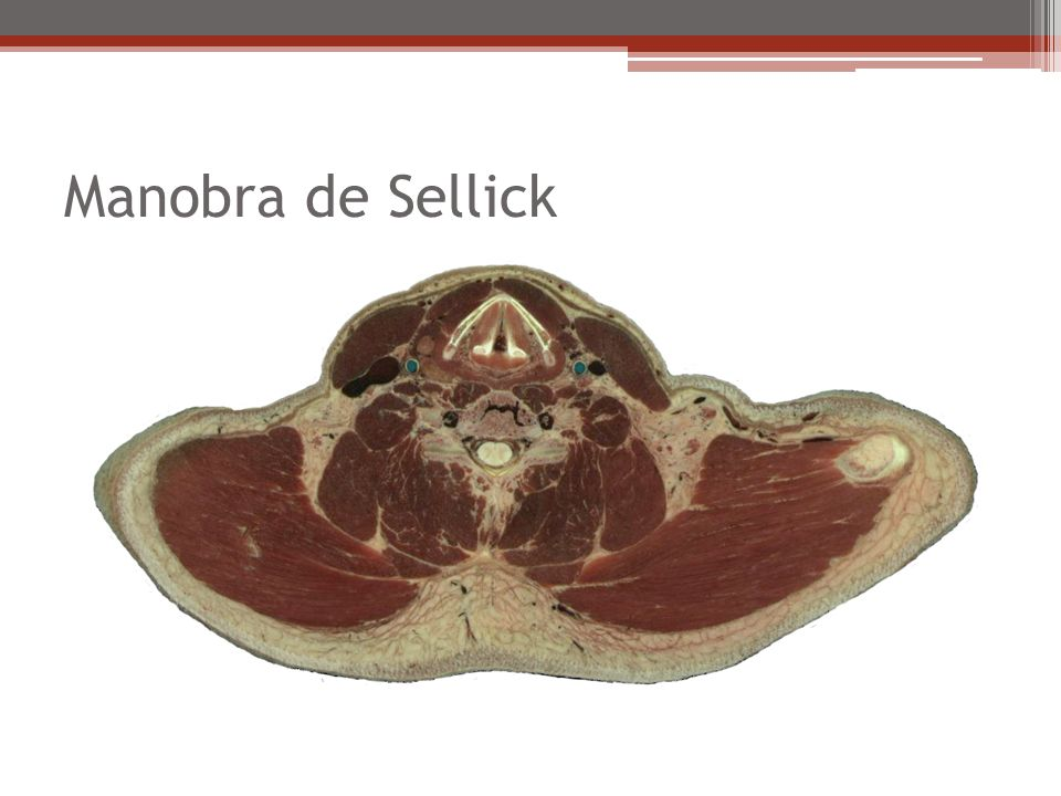 Manobra de Sellick