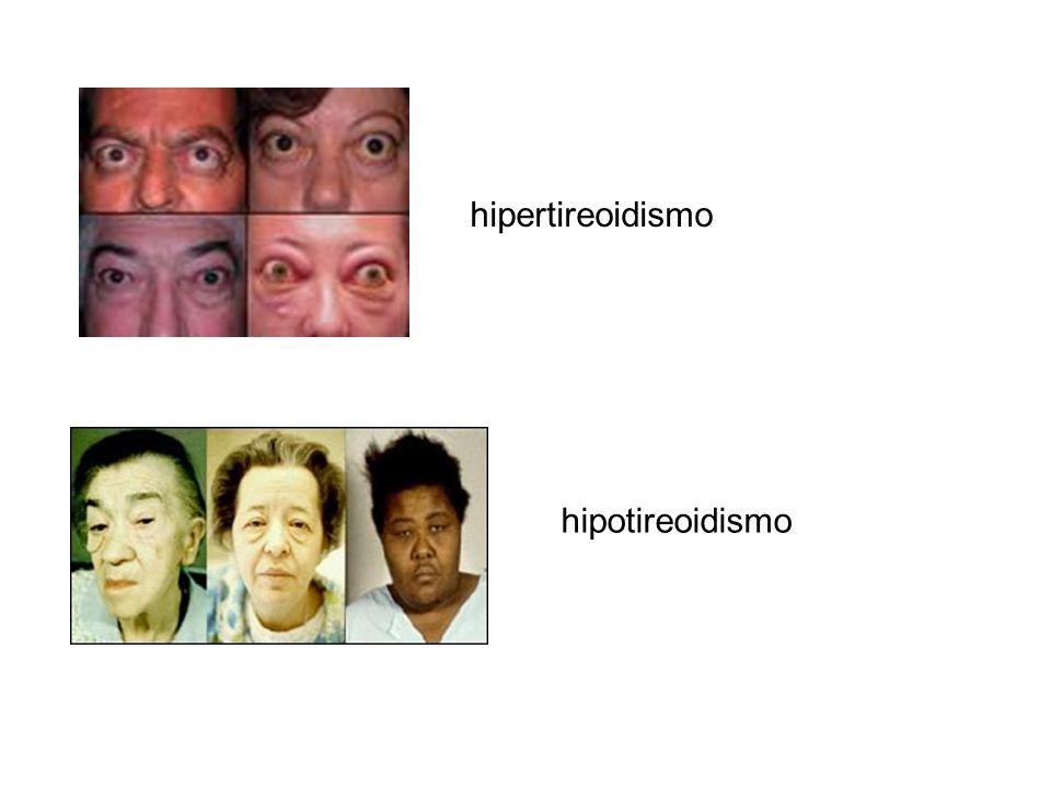 hipertireoidismo hipotireoidismo