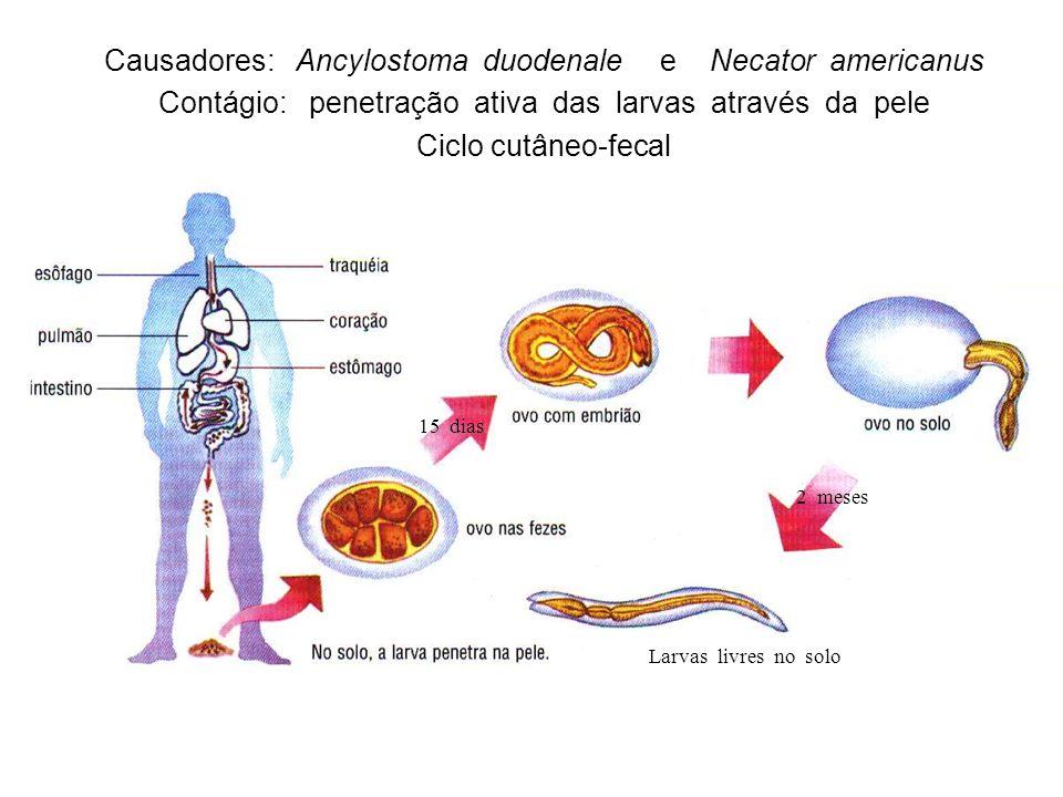 Causadores: Ancylostoma duodenale e Necator americanus