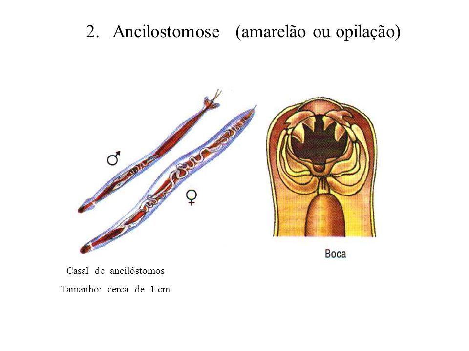 2. Ancilostomose (amarelão ou opilação)
