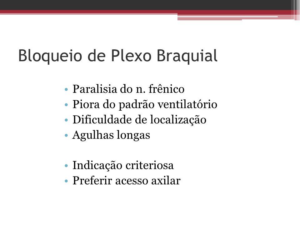 Bloqueio de Plexo Braquial