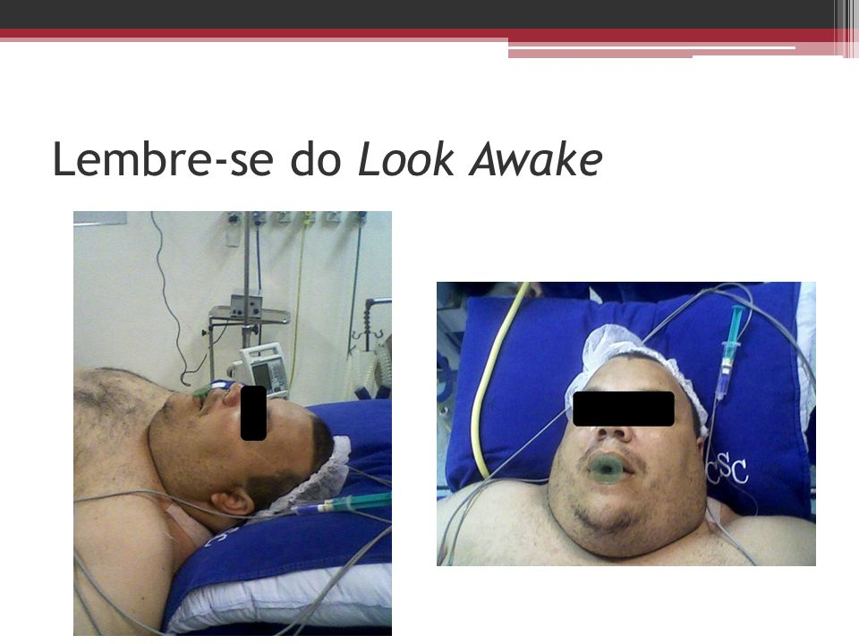 Lembre-se do Look Awake