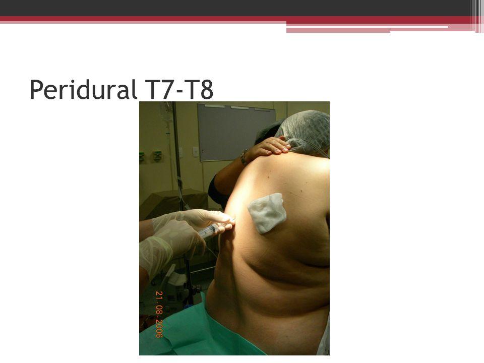 Peridural T7-T8