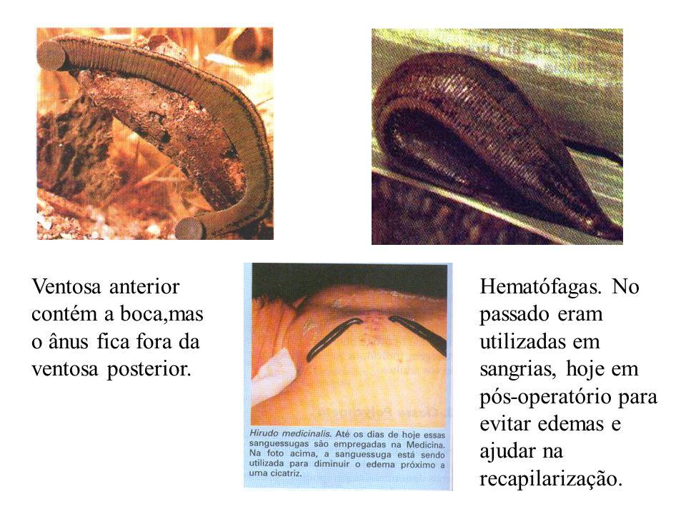 Ventosa anterior contém a boca,mas o ânus fica fora da ventosa posterior.