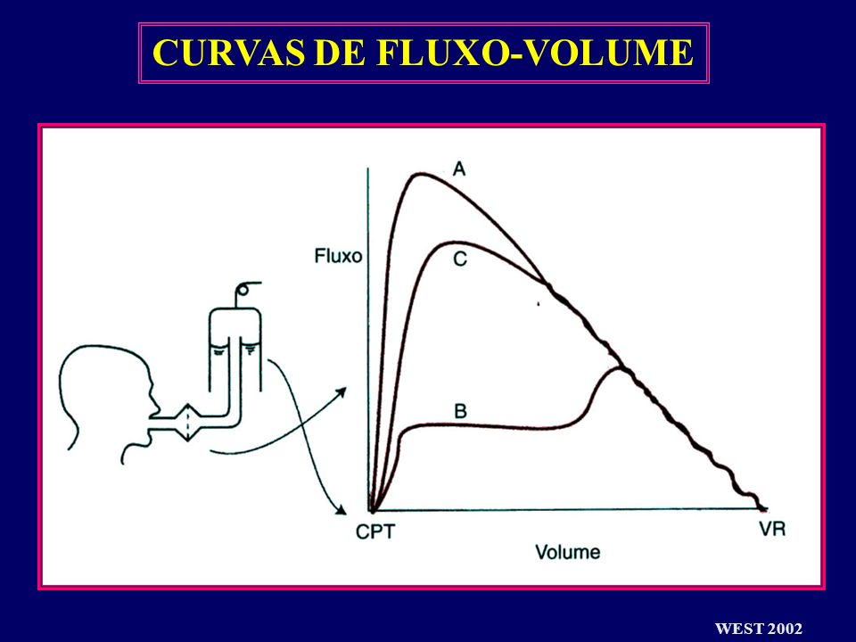 CURVAS DE FLUXO-VOLUME