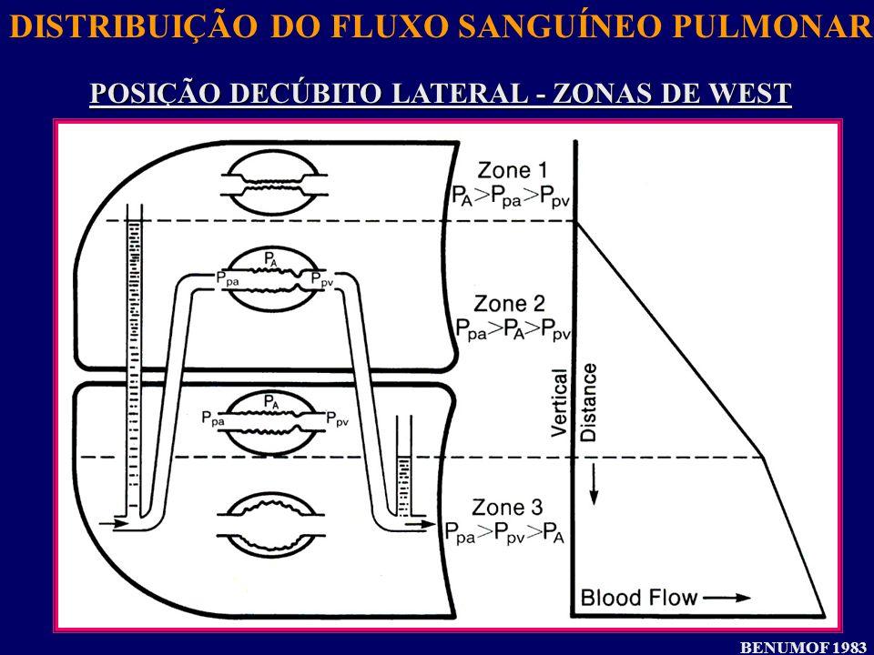 DISTRIBUIÇÃO DO FLUXO SANGUÍNEO PULMONAR