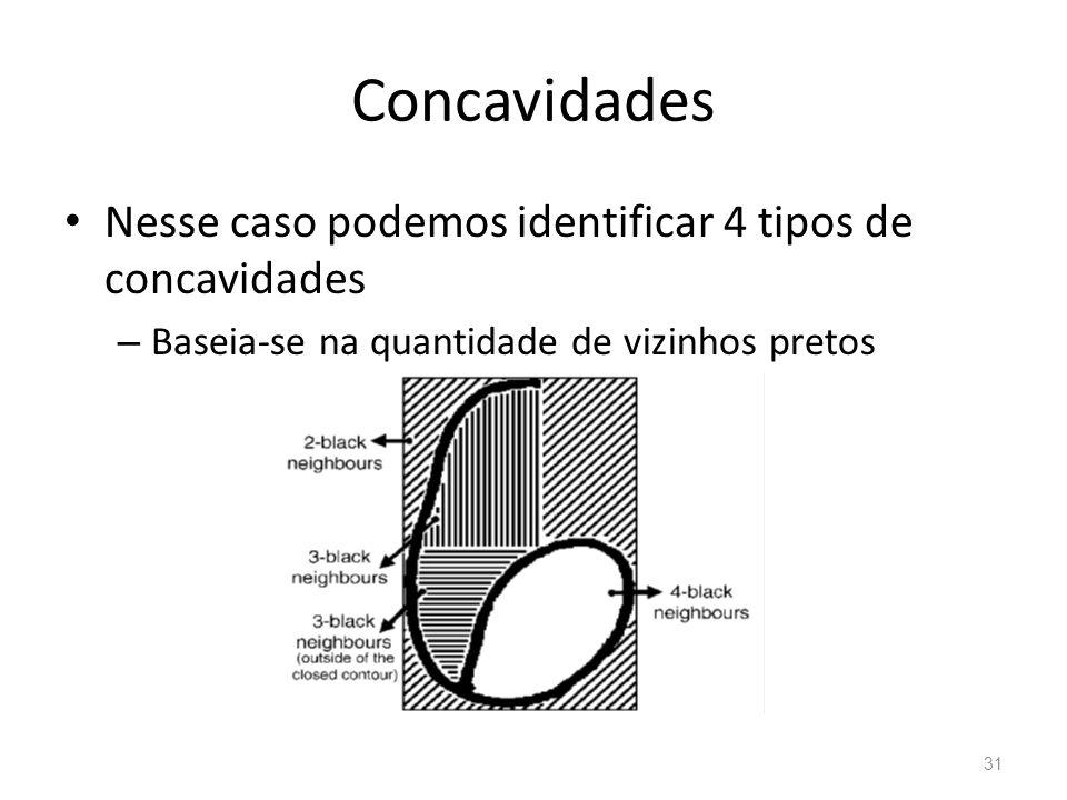 Concavidades Nesse caso podemos identificar 4 tipos de concavidades