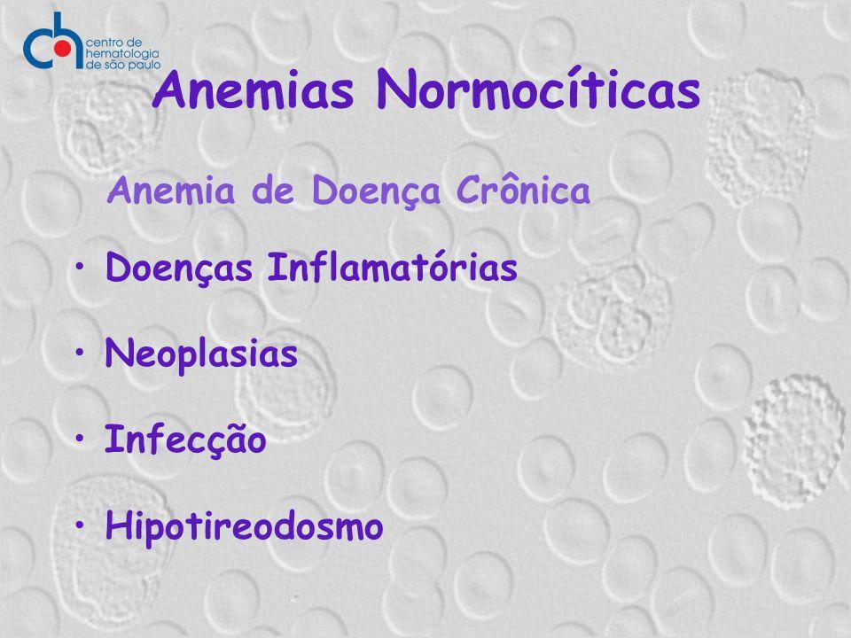 Anemias Normocíticas Anemia de Doença Crônica Doenças Inflamatórias