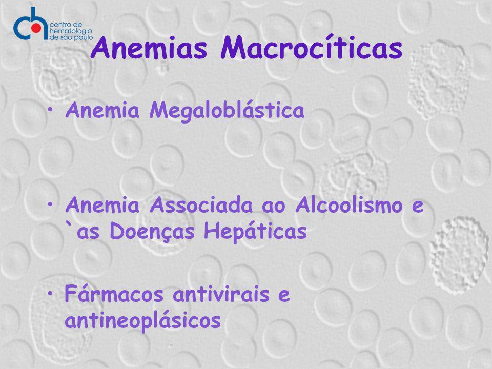 Anemias Macrocíticas Anemia Megaloblástica