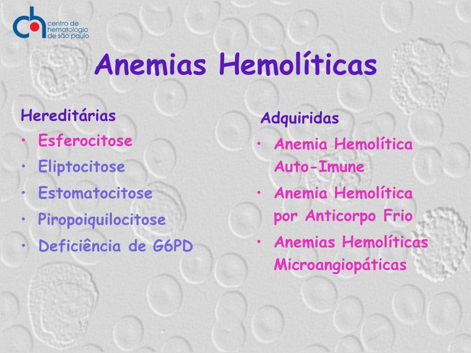 Anemias Hemolíticas Hereditárias Esferocitose Eliptocitose