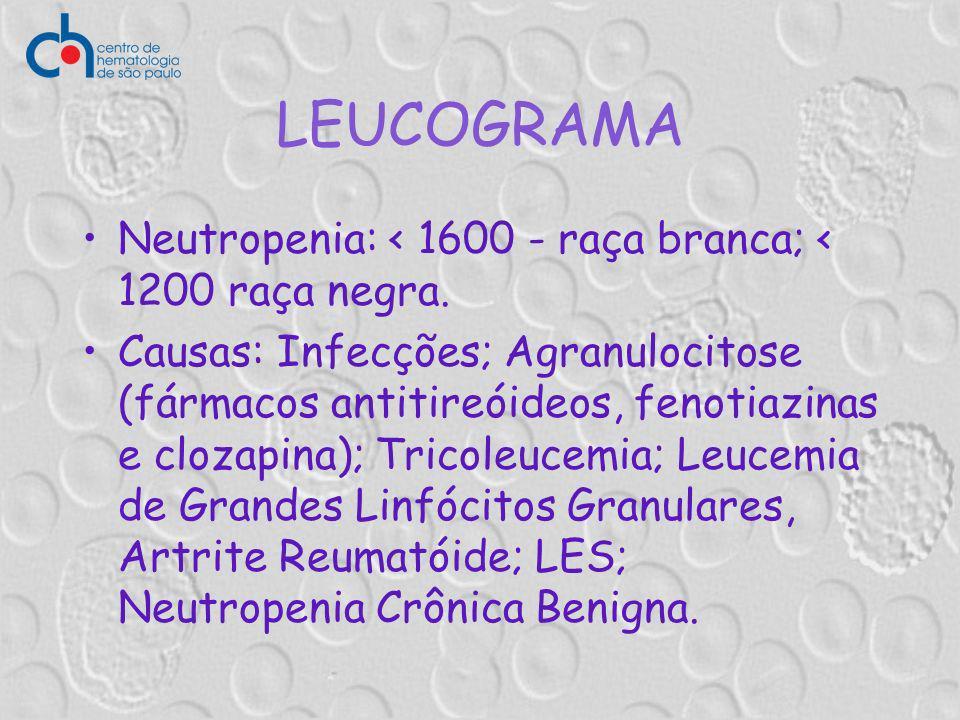 LEUCOGRAMA Neutropenia: < 1600 - raça branca; < 1200 raça negra.