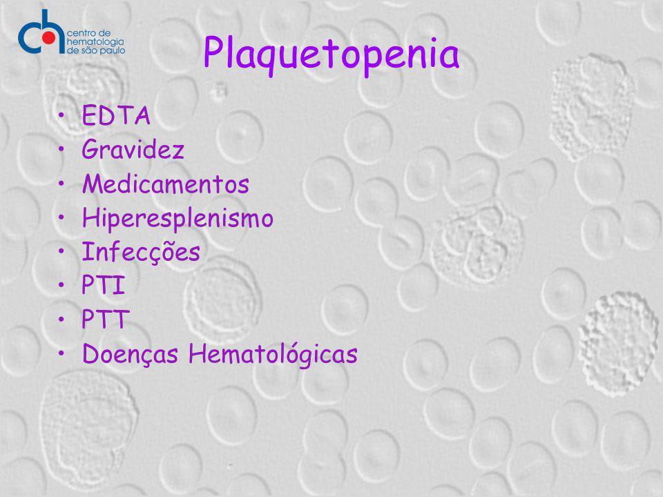Plaquetopenia EDTA Gravidez Medicamentos Hiperesplenismo Infecções PTI