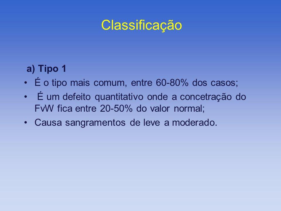 Classificação a) Tipo 1 É o tipo mais comum, entre 60-80% dos casos;